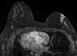 breast MRI category 5