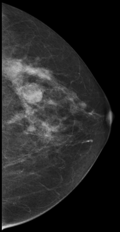 Calcifications Mammographykc Com Breast Health Breast